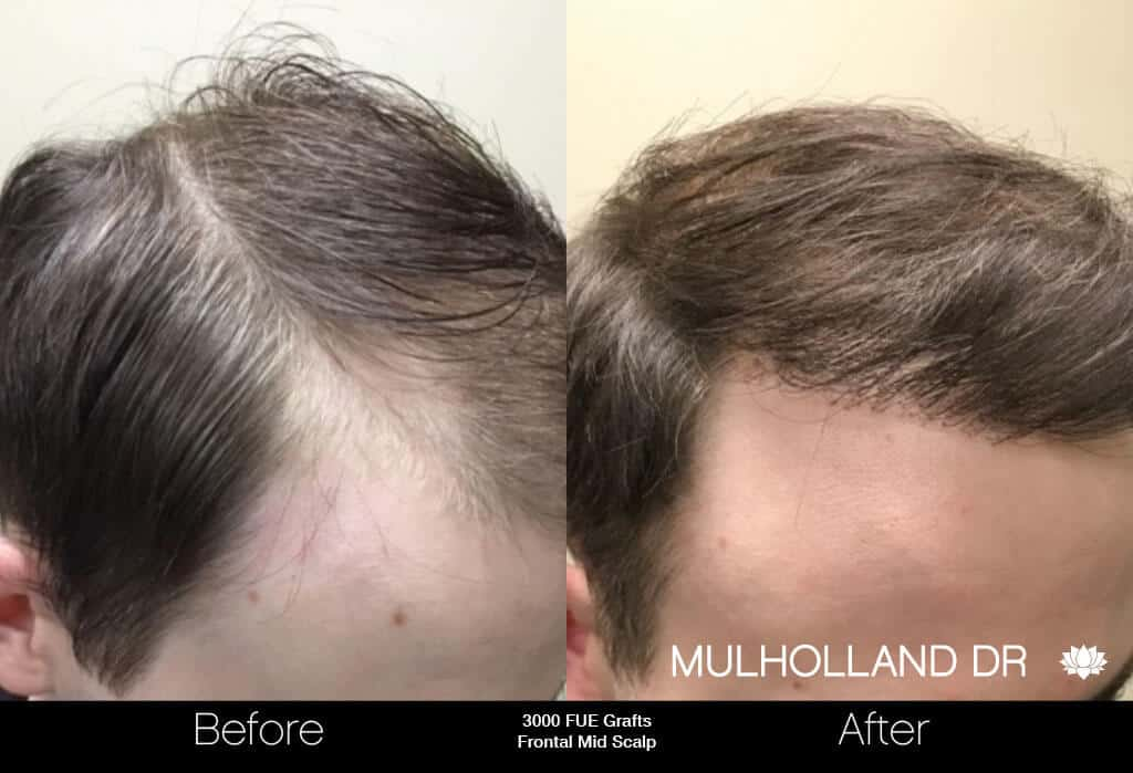 Artas Hair Transplant - Before and After Gallery - Patient Photo 4
