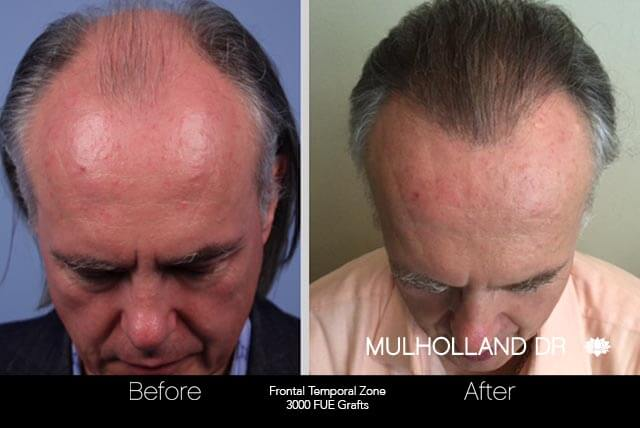 Artas Hair Transplant - Before and After Gallery - Patient Photo 41