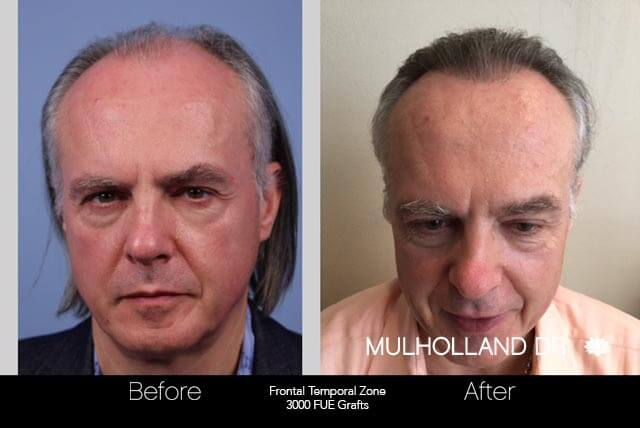 Artas Hair Transplant - Before and After Gallery - Patient Photo 42