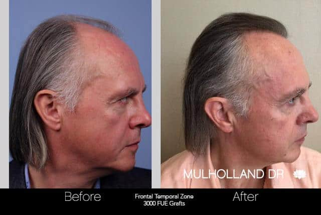 Artas Hair Transplant - Before and After Gallery - Patient Photo 43