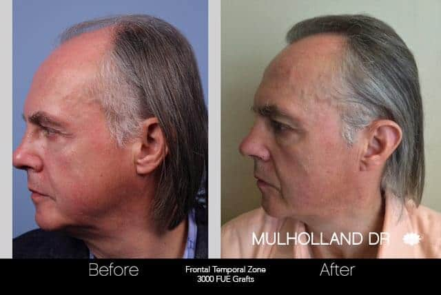 Artas Hair Transplant - Before and After Gallery - Patient Photo 44