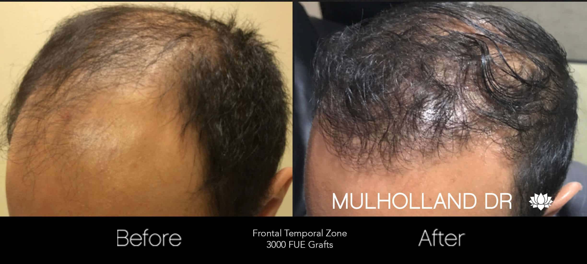 Artas Hair Transplant - Before and After Gallery - Patient Photo 45