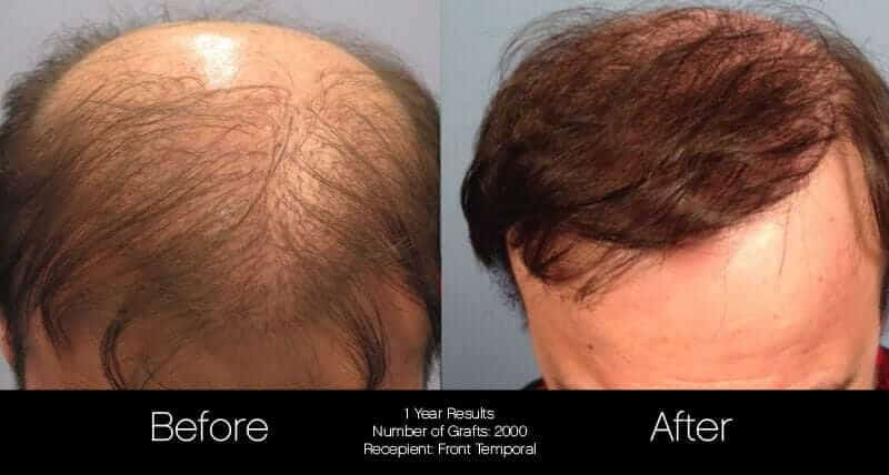 Artas Hair Transplant - Before and After Gallery - Patient Photo 46