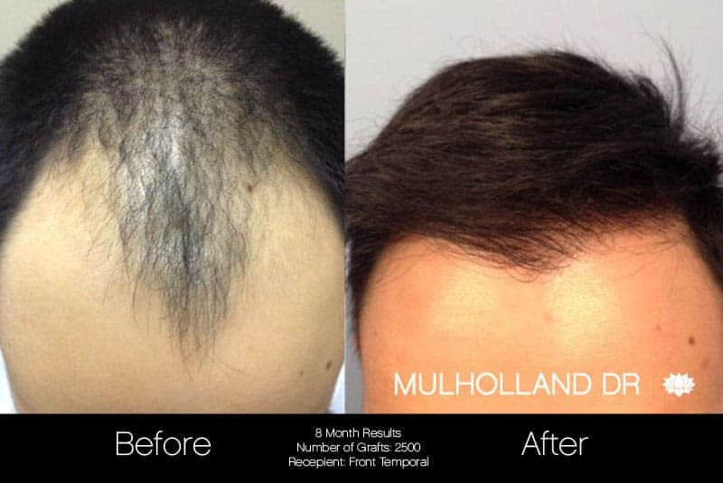 Artas Hair Transplant - Before and After Gallery - Patient Photo 47