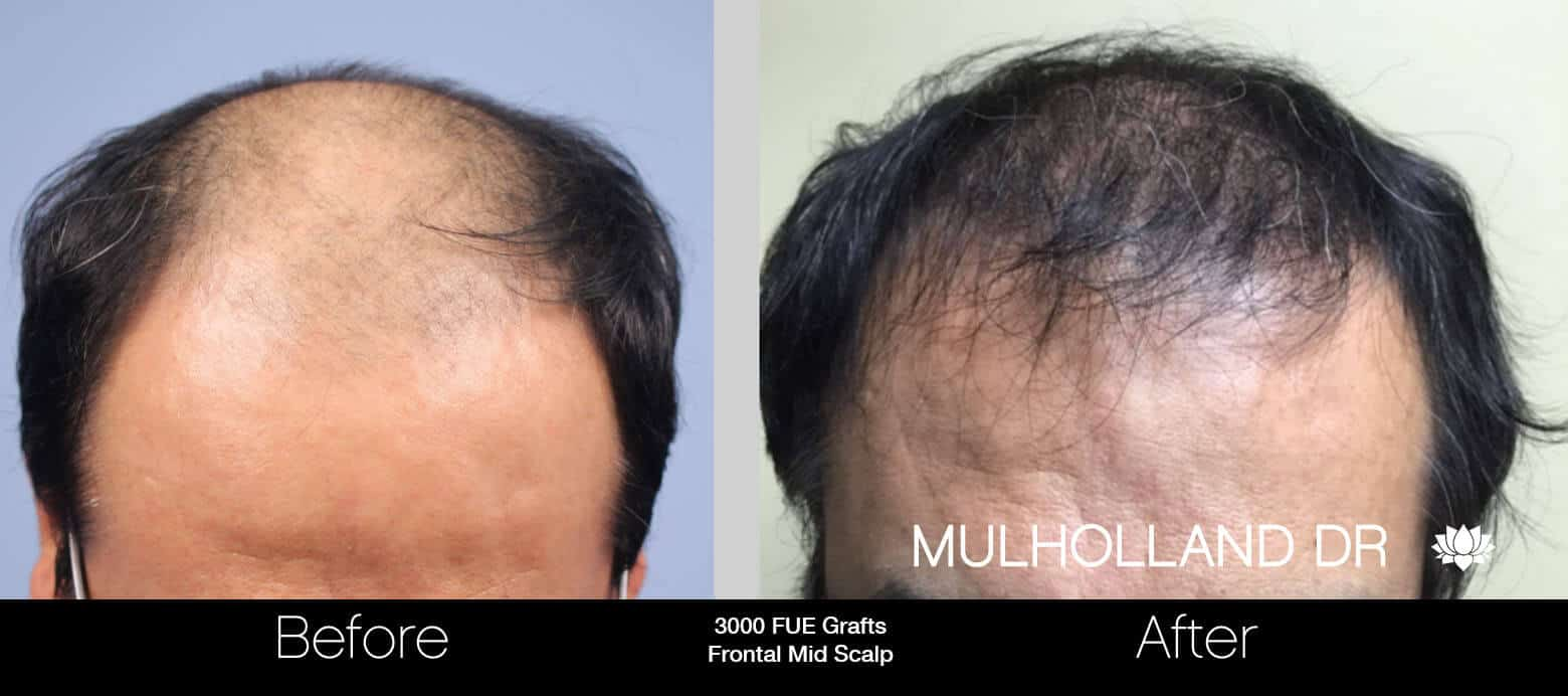 Artas Hair Transplant - Before and After Gallery - Patient Photo 48