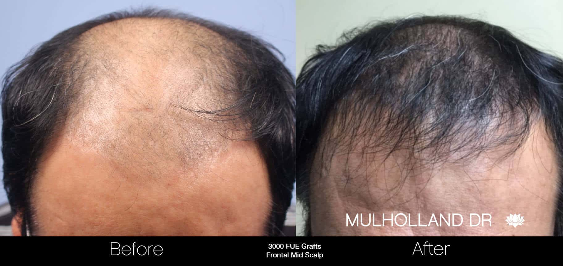 Artas Hair Transplant - Before and After Gallery - Patient Photo 49