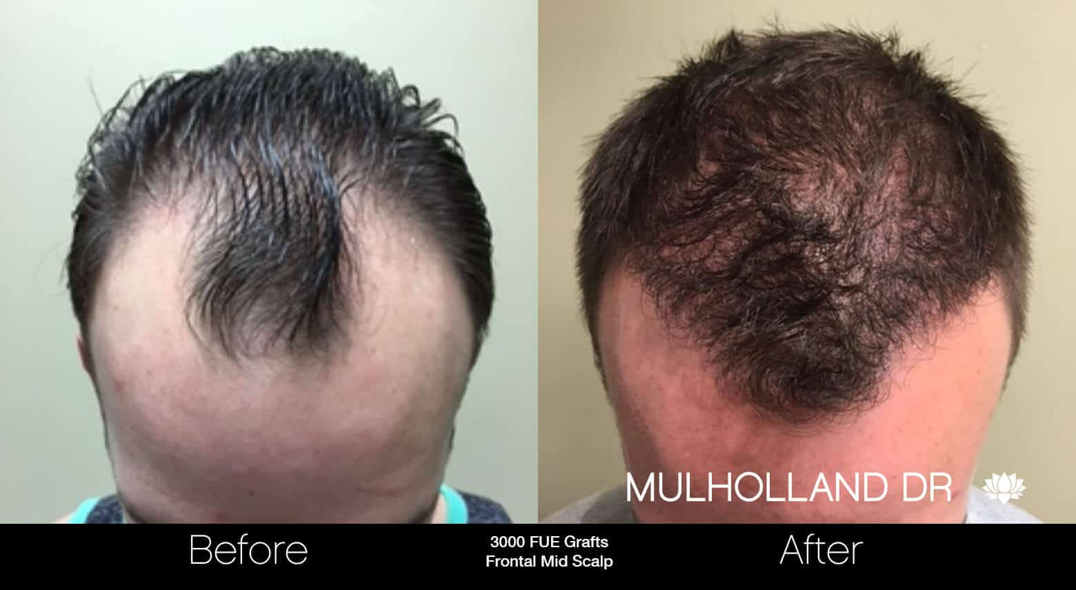 Artas Hair Transplant - Before and After Gallery - Patient Photo 5