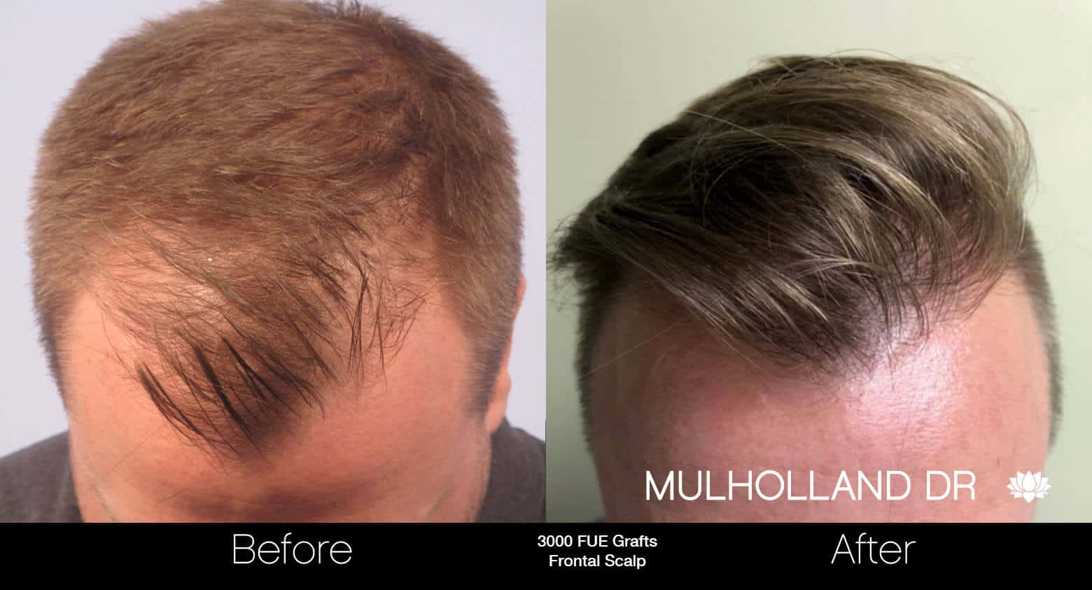 Artas Hair Transplant - Before and After Gallery - Patient Photo 50