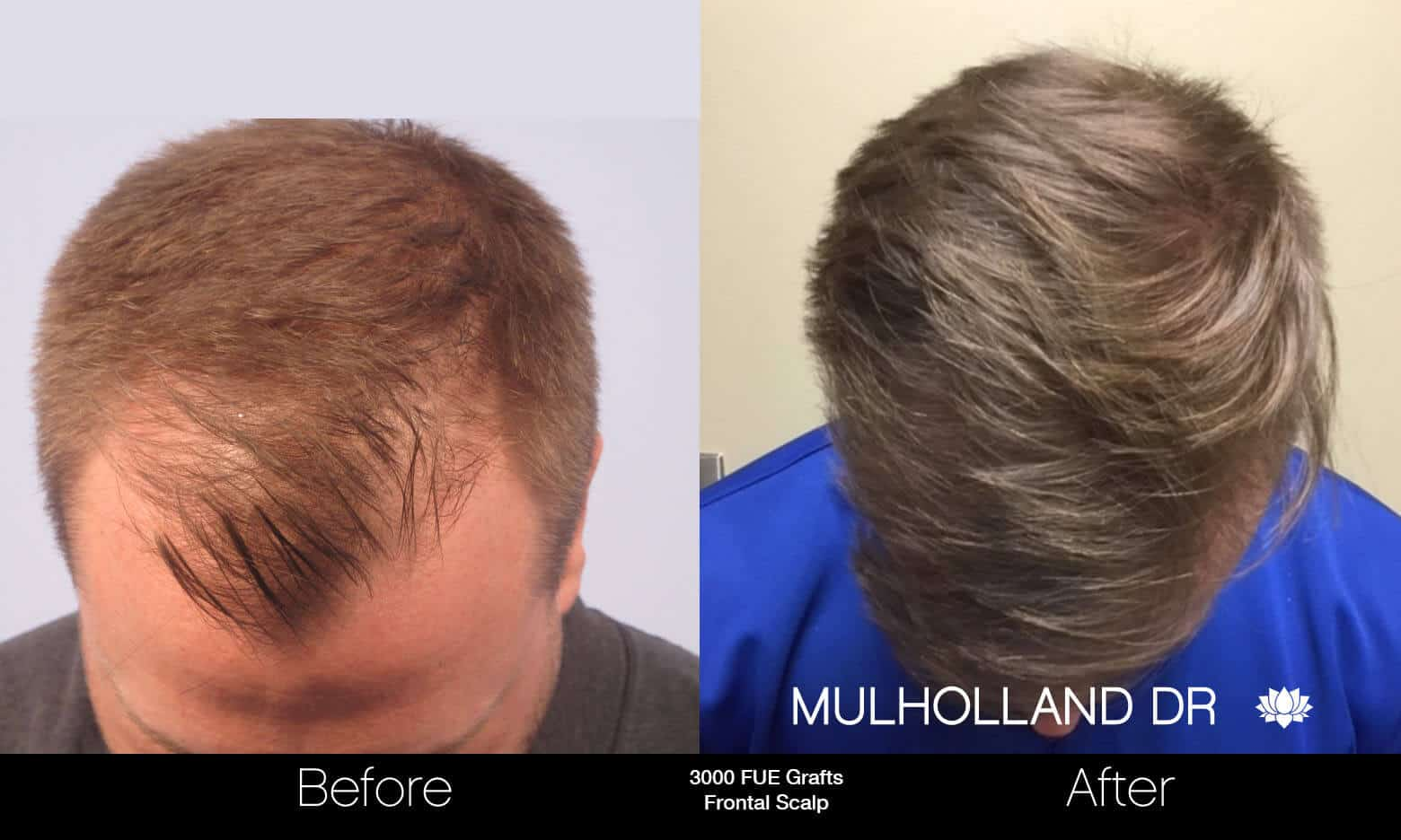 Artas Hair Transplant - Before and After Gallery - Patient Photo 52