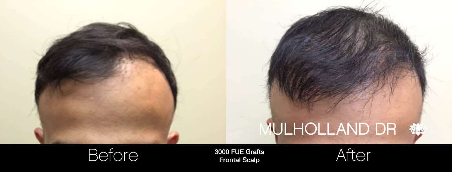 Artas Hair Transplant - Before and After Gallery - Patient Photo 53