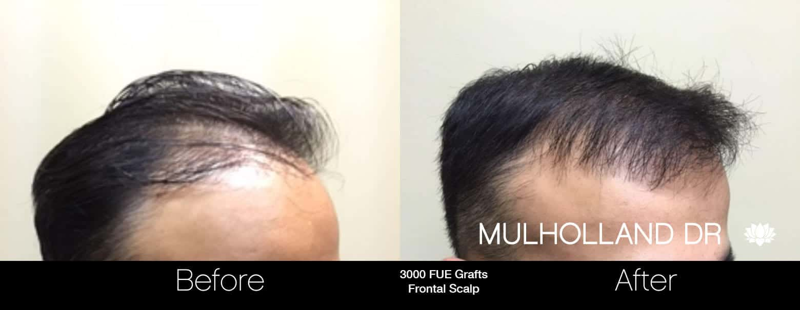 Artas Hair Transplant - Before and After Gallery - Patient Photo 55