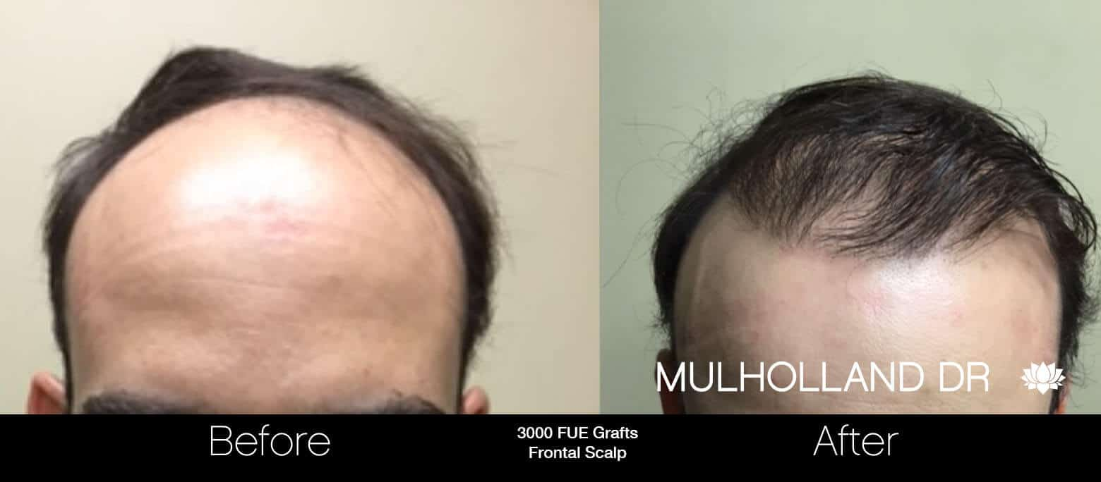 Artas Hair Transplant - Before and After Gallery - Patient Photo 56