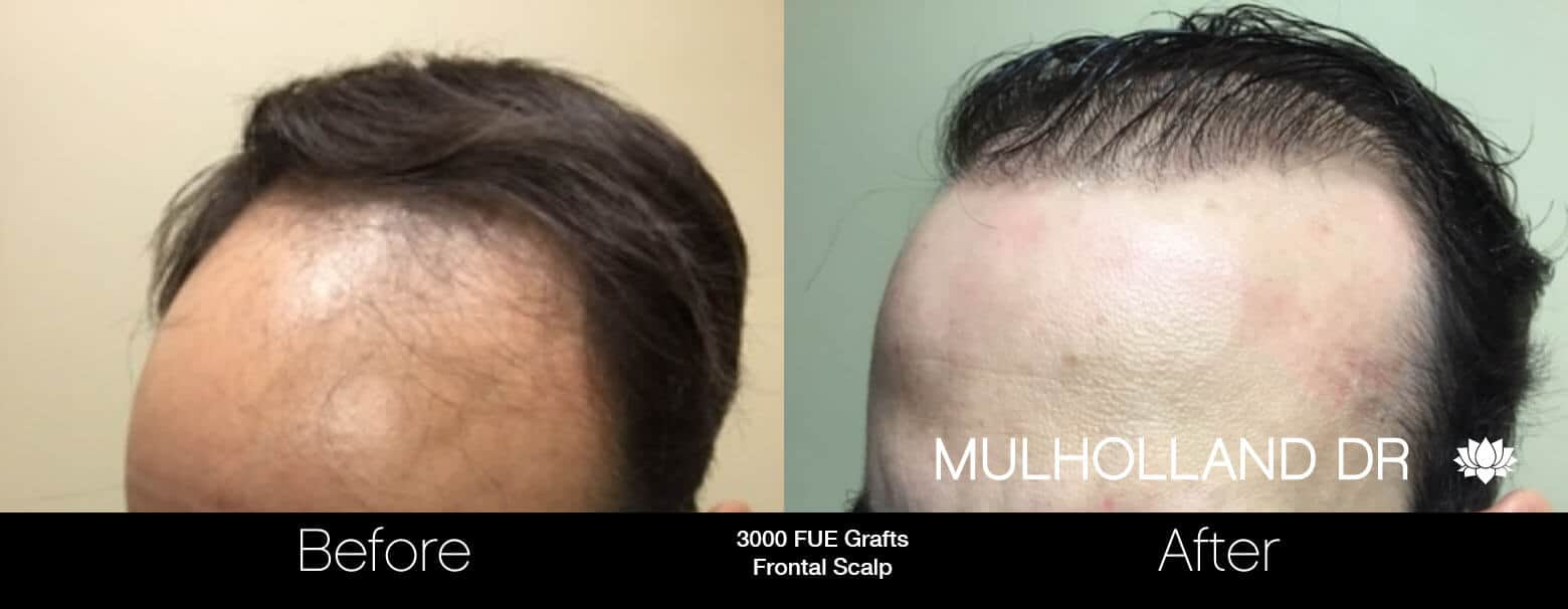 Artas Hair Transplant - Before and After Gallery - Patient Photo 57