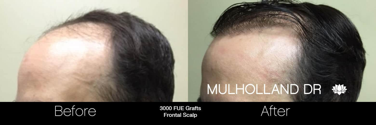 Artas Hair Transplant - Before and After Gallery - Patient Photo 58