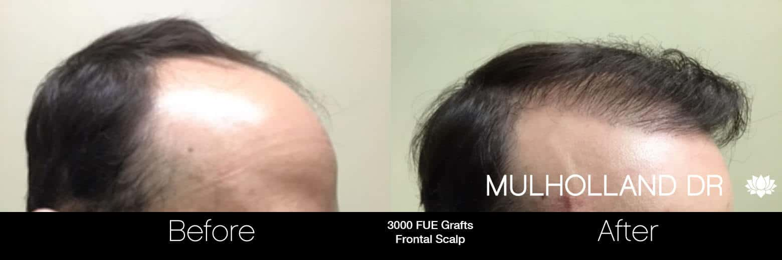 Artas Hair Transplant - Before and After Gallery - Patient Photo 59