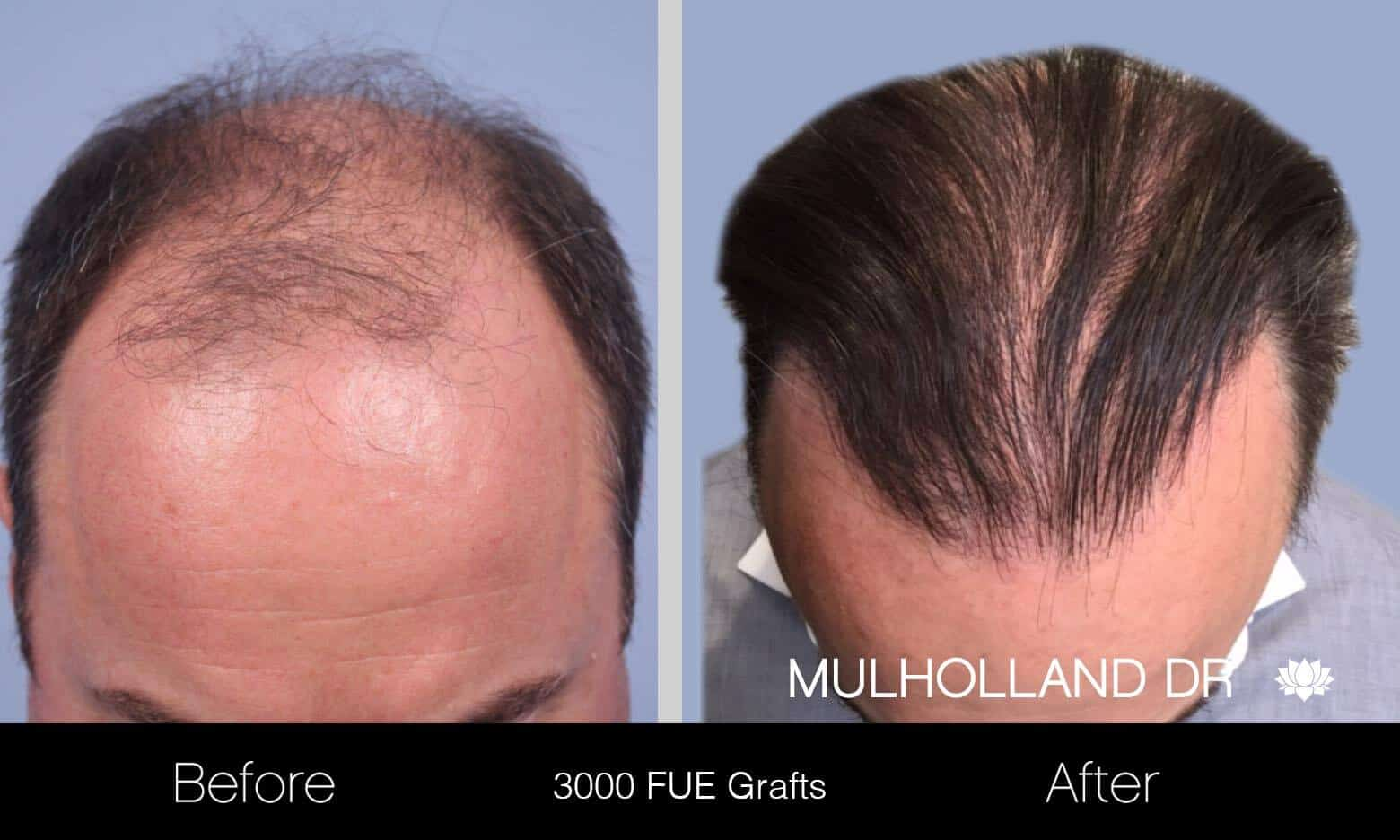 Artas Hair Transplant - Before and After Gallery - Patient Photo 6