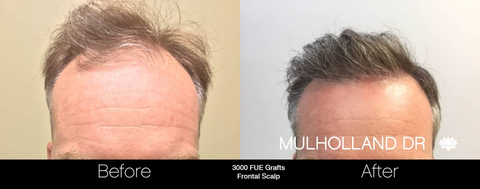 Artas Hair Transplant - Before and After Gallery - Patient Photo 60