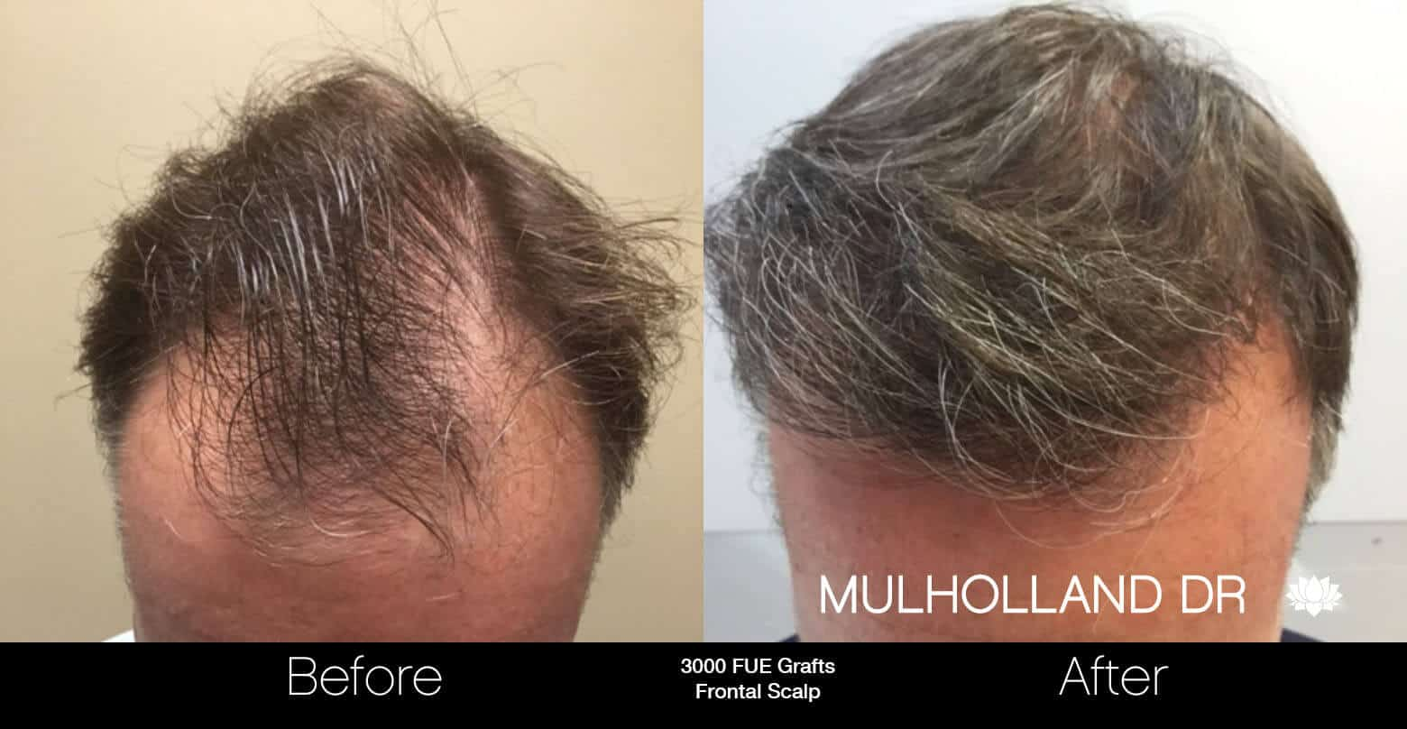 Artas Hair Transplant - Before and After Gallery - Patient Photo 61