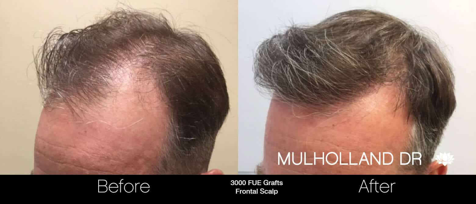 Artas Hair Transplant - Before and After Gallery - Patient Photo 62