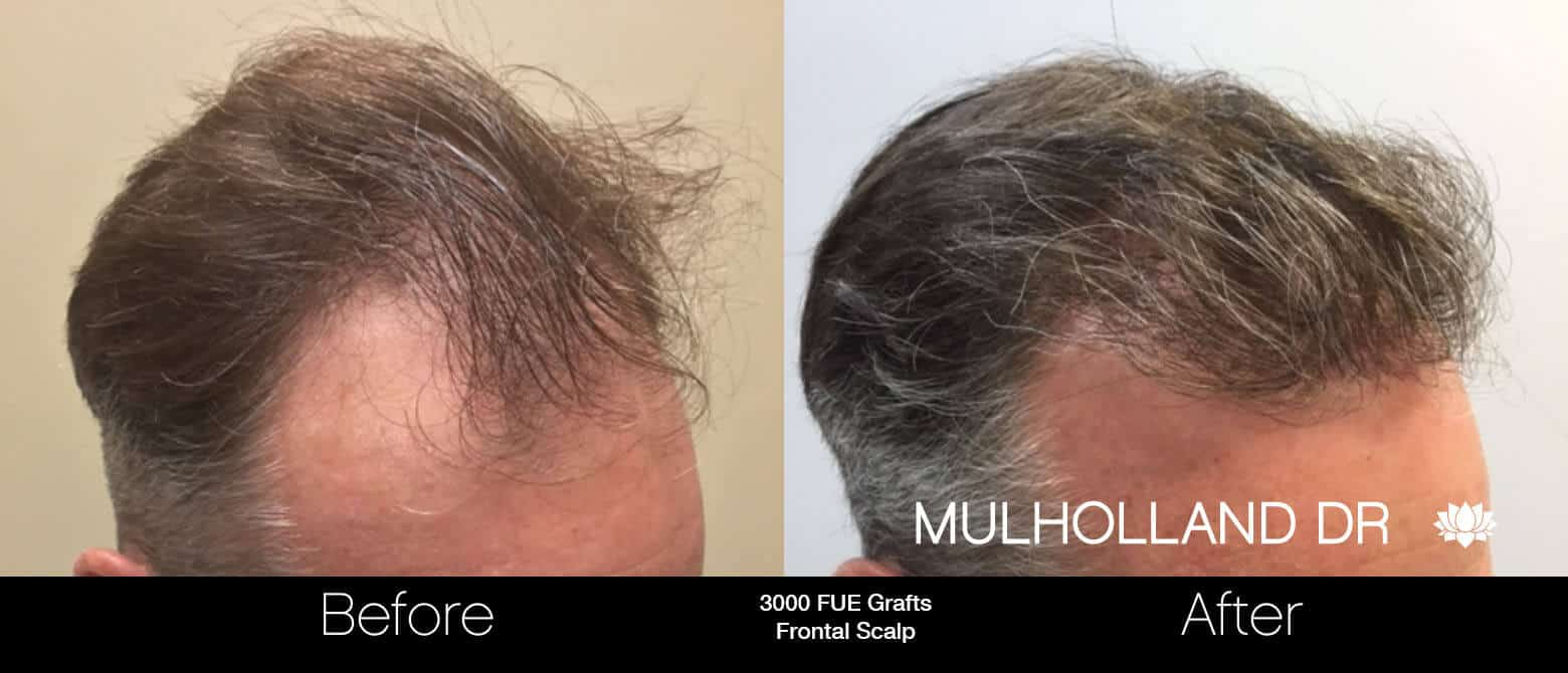 Artas Hair Transplant - Before and After Gallery - Patient Photo 63