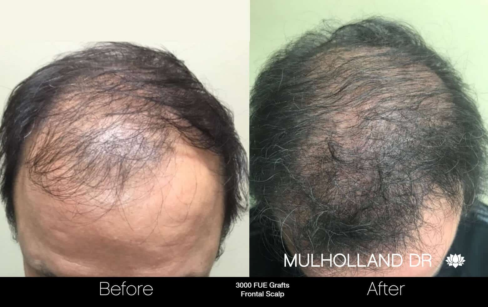 Artas Hair Transplant - Before and After Gallery - Patient Photo 64