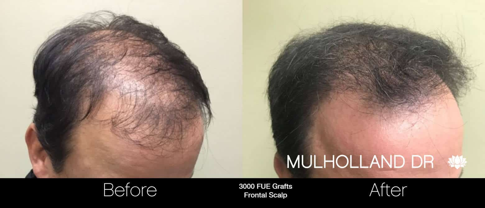 Artas Hair Transplant - Before and After Gallery - Patient Photo 65