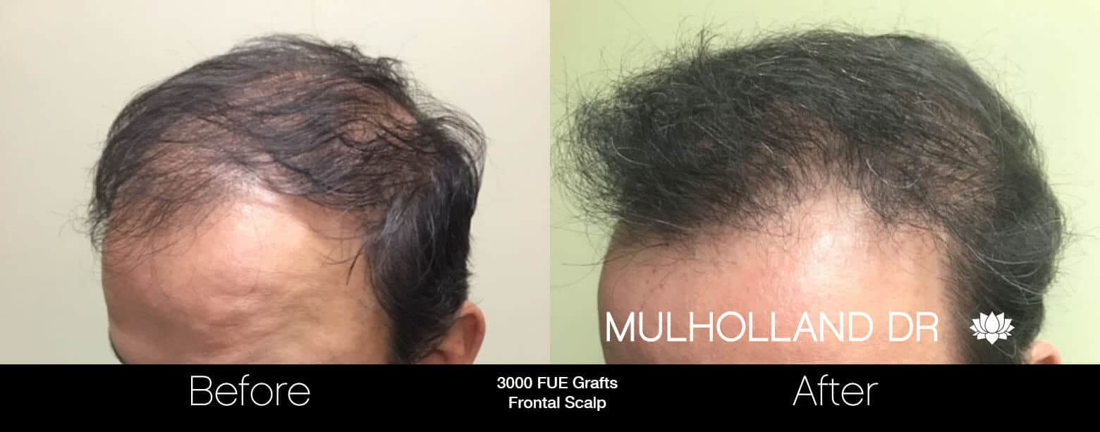 Artas Hair Transplant - Before and After Gallery - Patient Photo 66