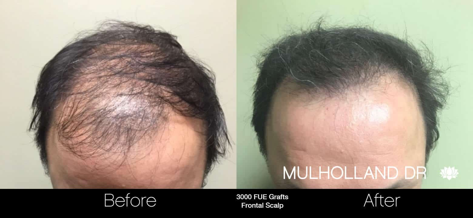 Artas Hair Transplant - Before and After Gallery - Patient Photo 67