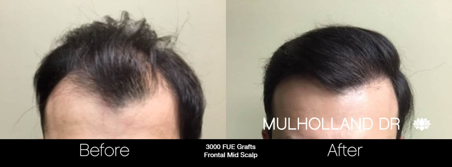 Artas Hair Transplant - Before and After Gallery - Patient Photo 68