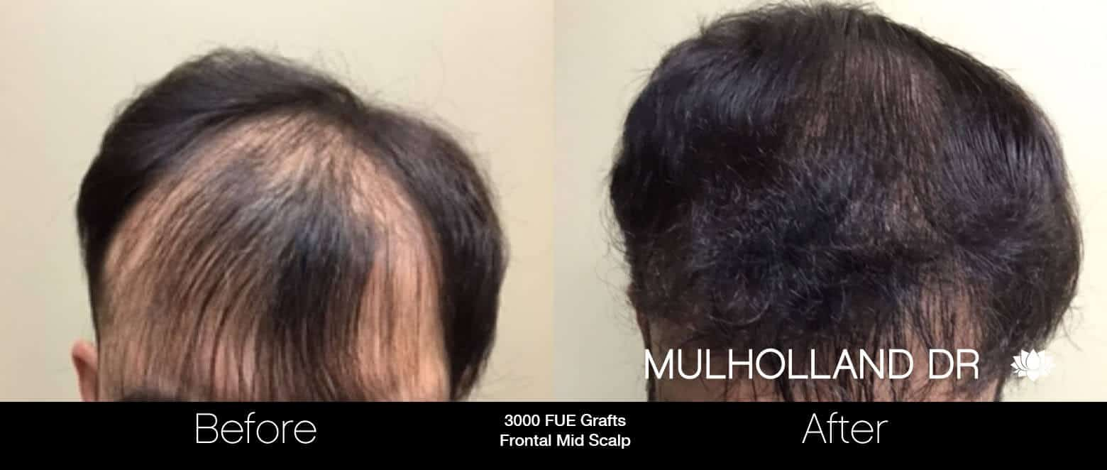 Artas Hair Transplant - Before and After Gallery - Patient Photo 69