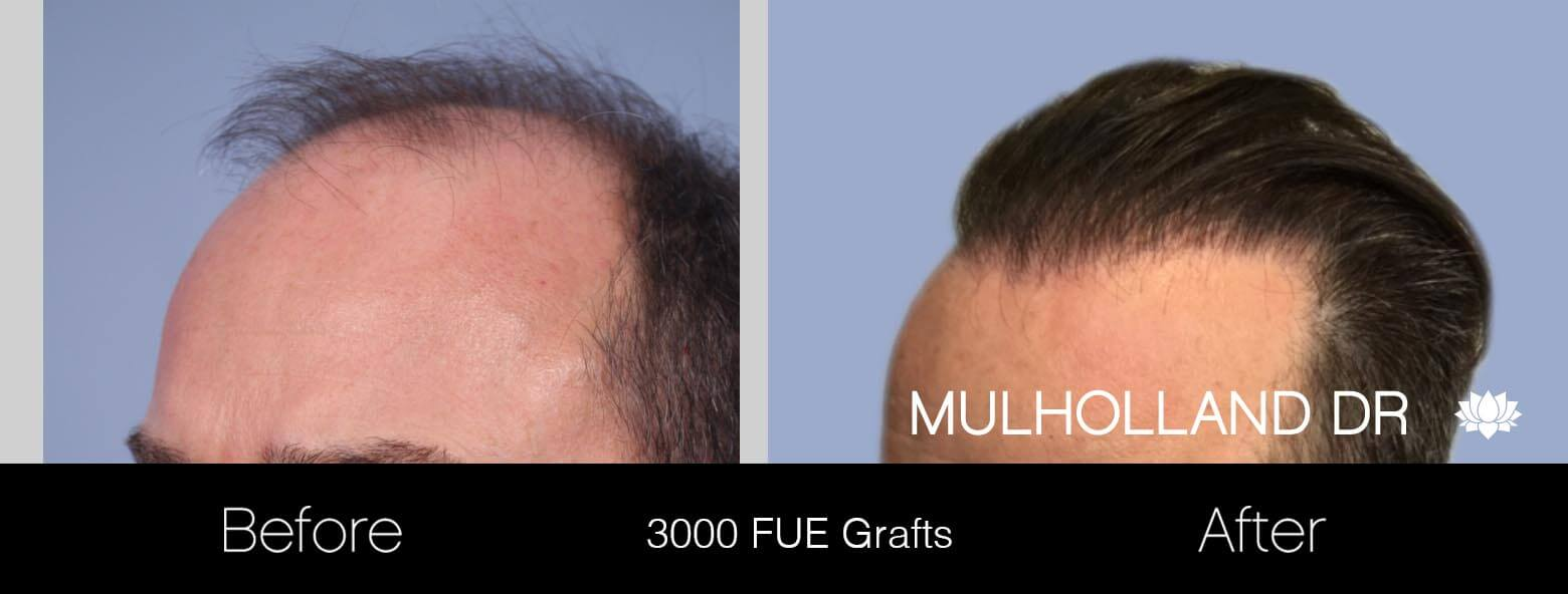 Artas Hair Transplant - Before and After Gallery - Patient Photo 7