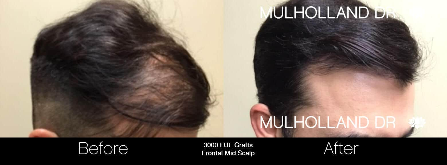 Artas Hair Transplant - Before and After Gallery - Patient Photo 71