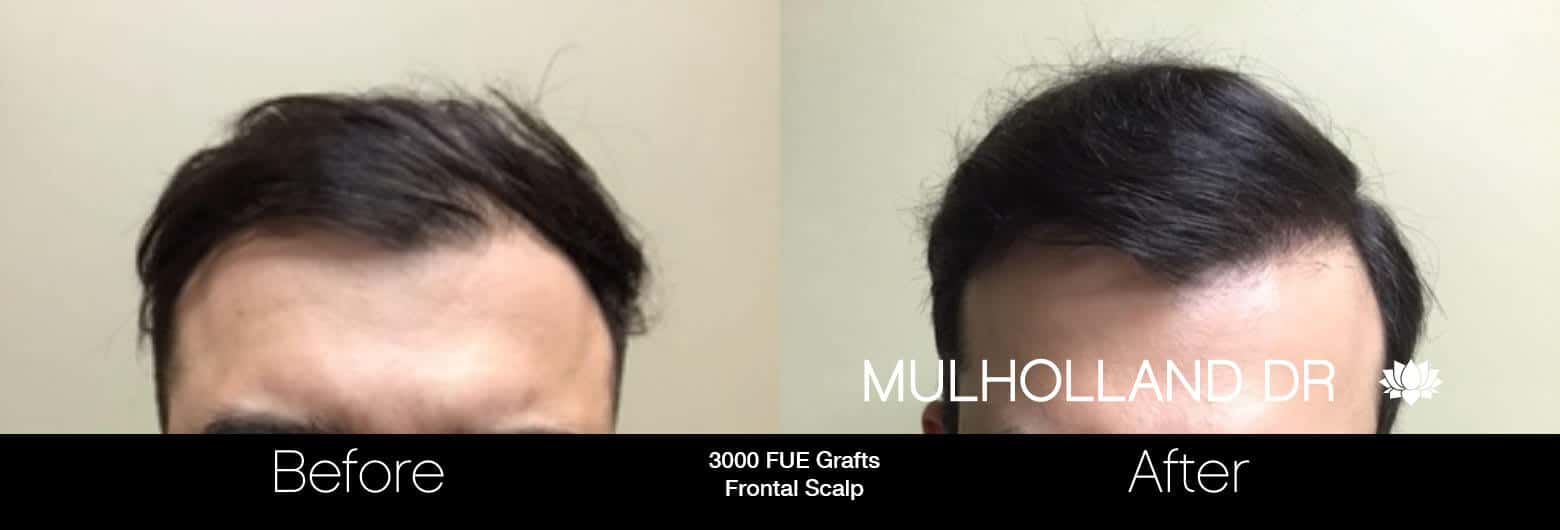 Artas Hair Transplant - Before and After Gallery - Patient Photo 73