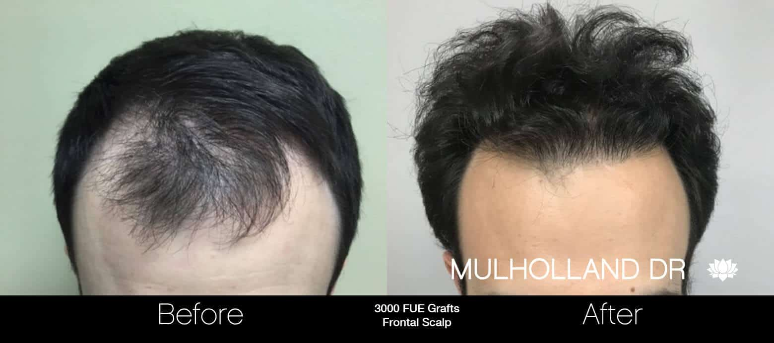 Artas Hair Transplant - Before and After Gallery - Patient Photo 74