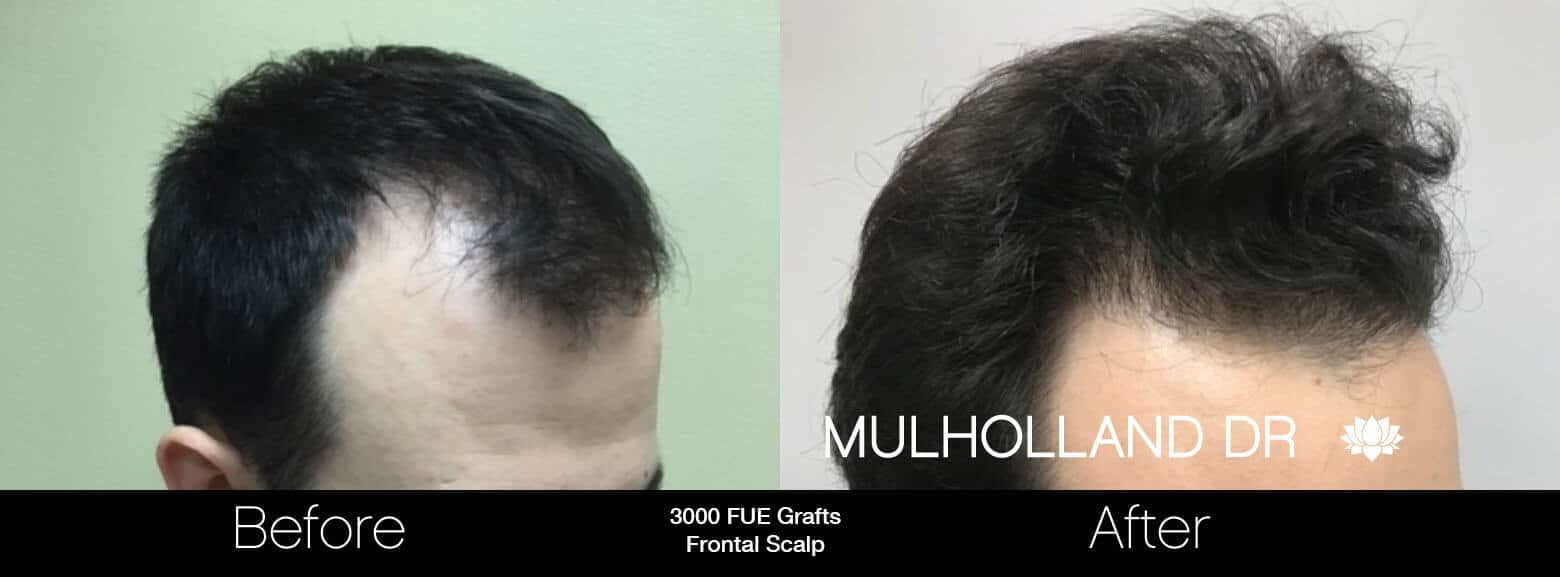 Artas Hair Transplant - Before and After Gallery - Patient Photo 75