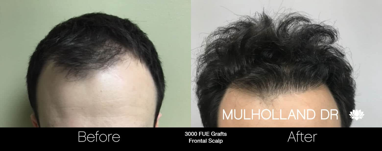 Artas Hair Transplant - Before and After Gallery - Patient Photo 76