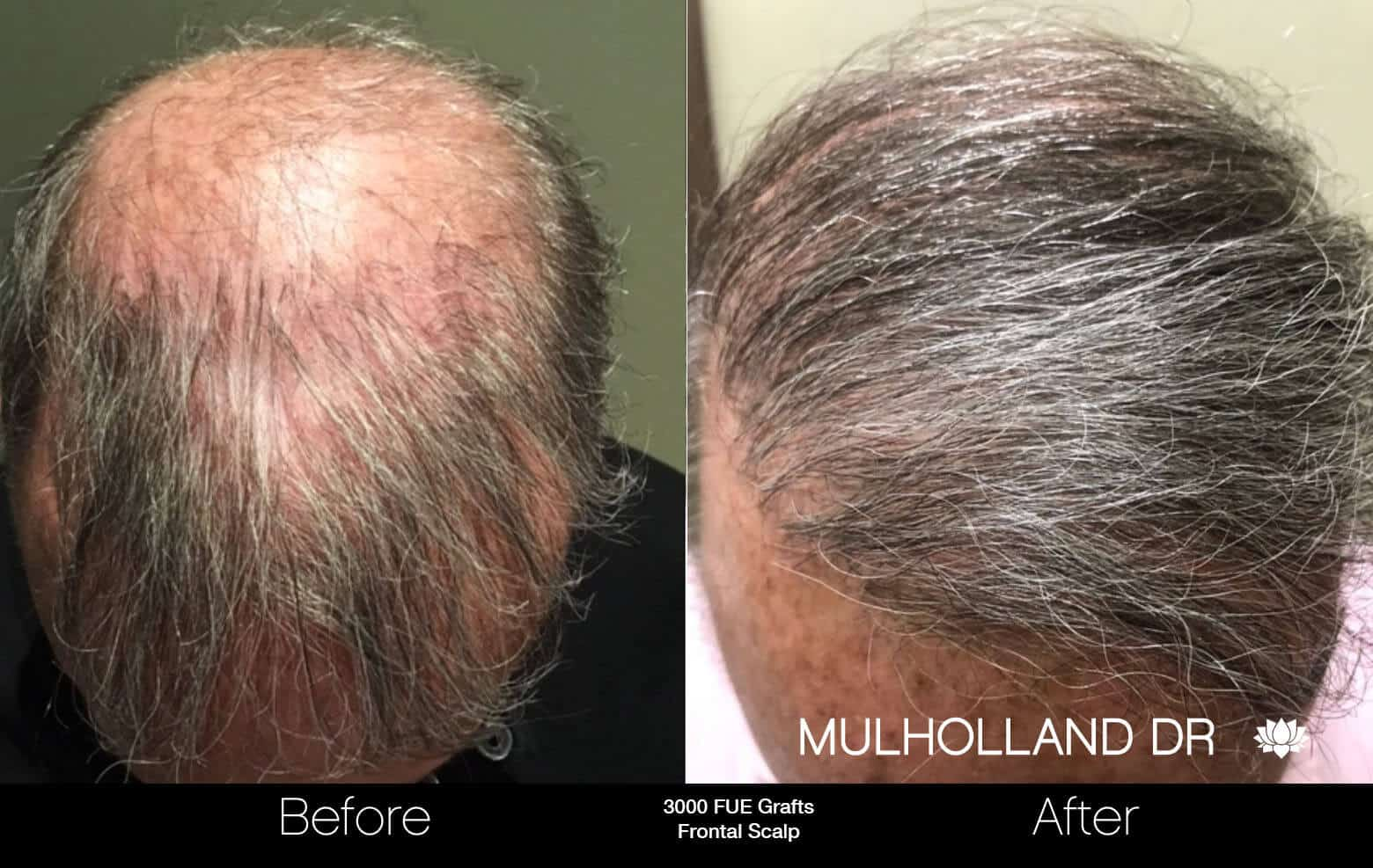 Artas Hair Transplant - Before and After Gallery - Patient Photo 77