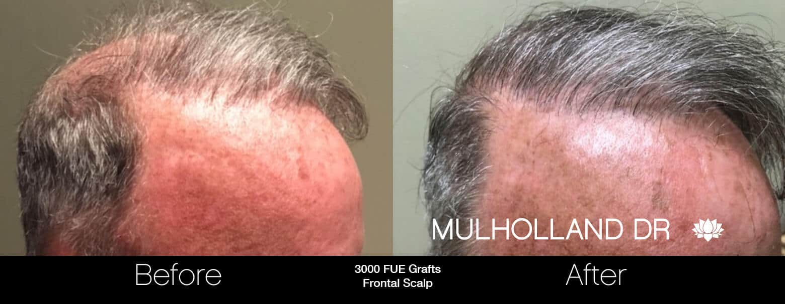 Artas Hair Transplant - Before and After Gallery - Patient Photo 78