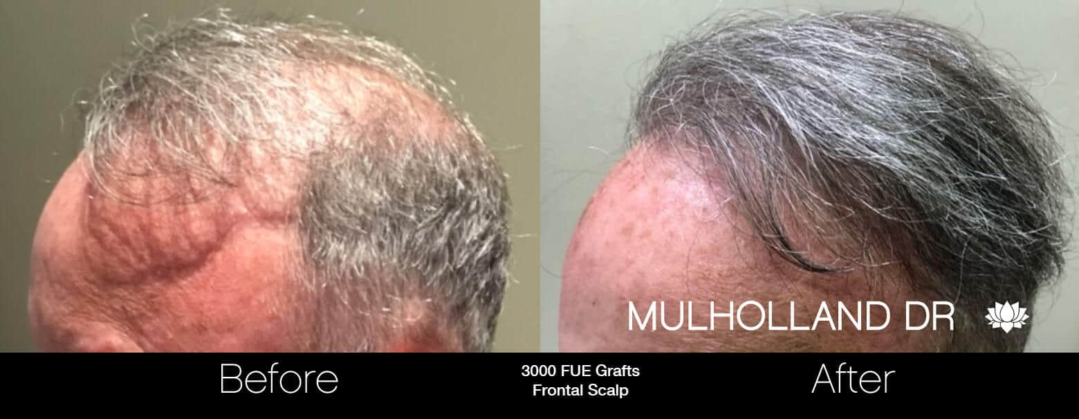 Artas Hair Transplant - Before and After Gallery - Patient Photo 79