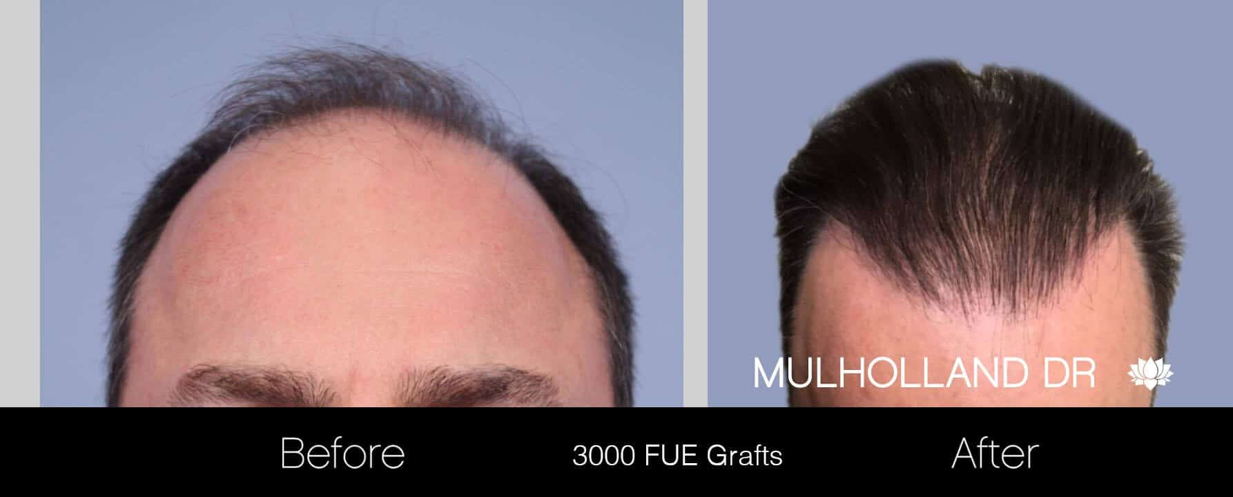 Artas Hair Transplant - Before and After Gallery - Patient Photo 8