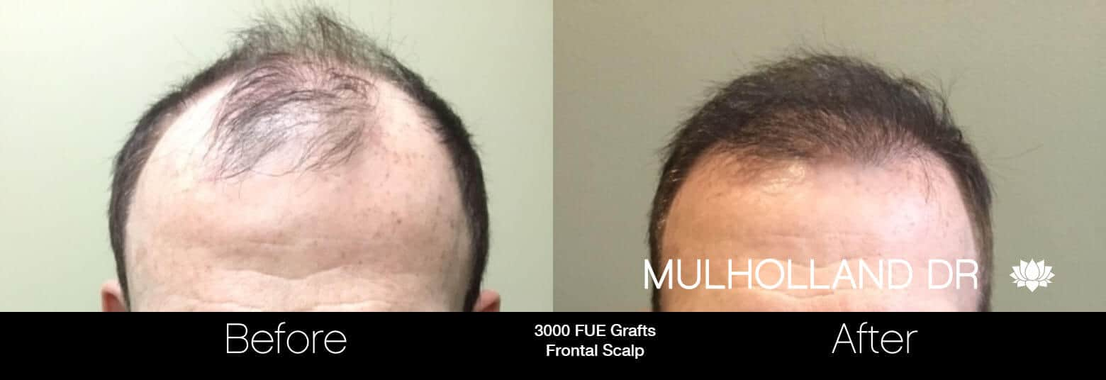 Artas Hair Transplant - Before and After Gallery - Patient Photo 80