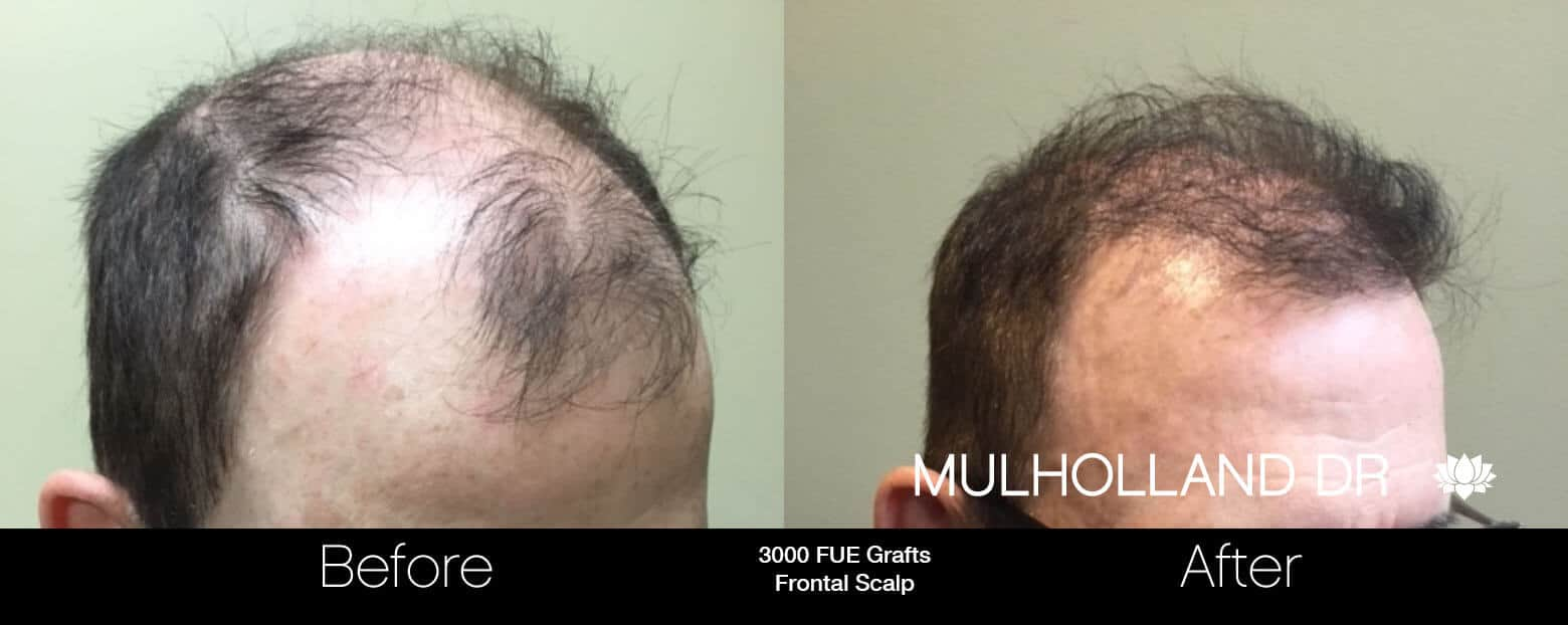 Artas Hair Transplant - Before and After Gallery - Patient Photo 83
