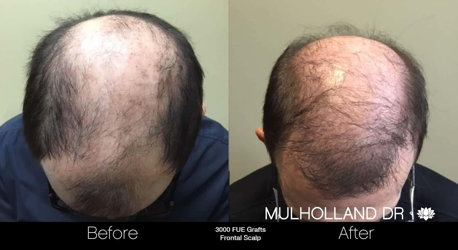 Artas Hair Transplant - Before and After Gallery - Patient Photo 84