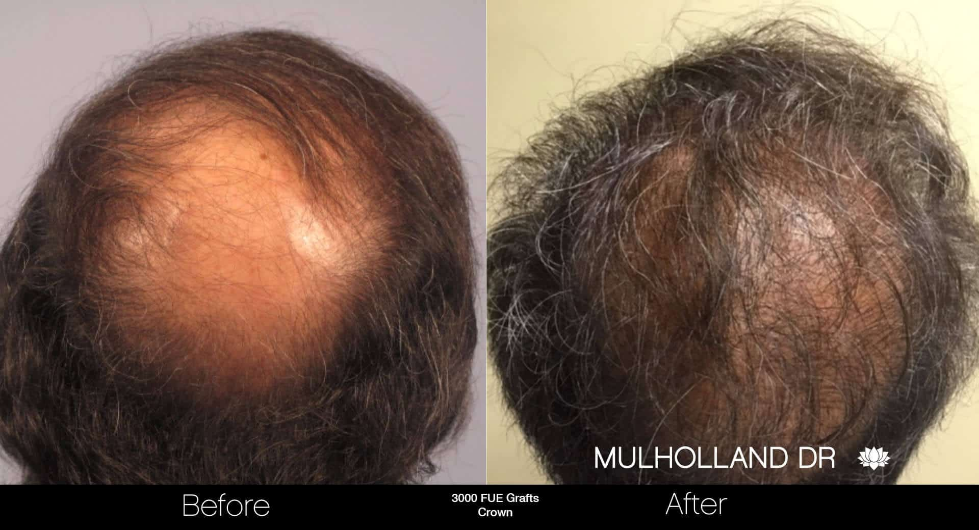 Artas Hair Transplant - Before and After Gallery - Patient Photo 85
