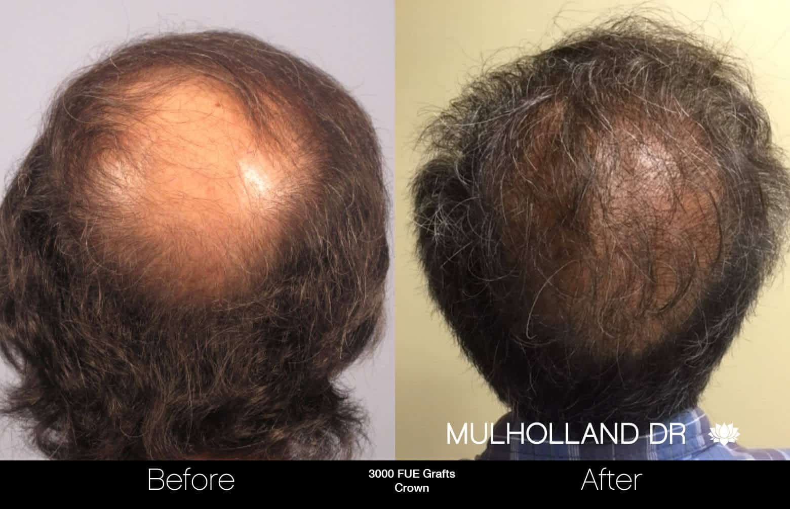 Artas Hair Transplant - Before and After Gallery - Patient Photo 86