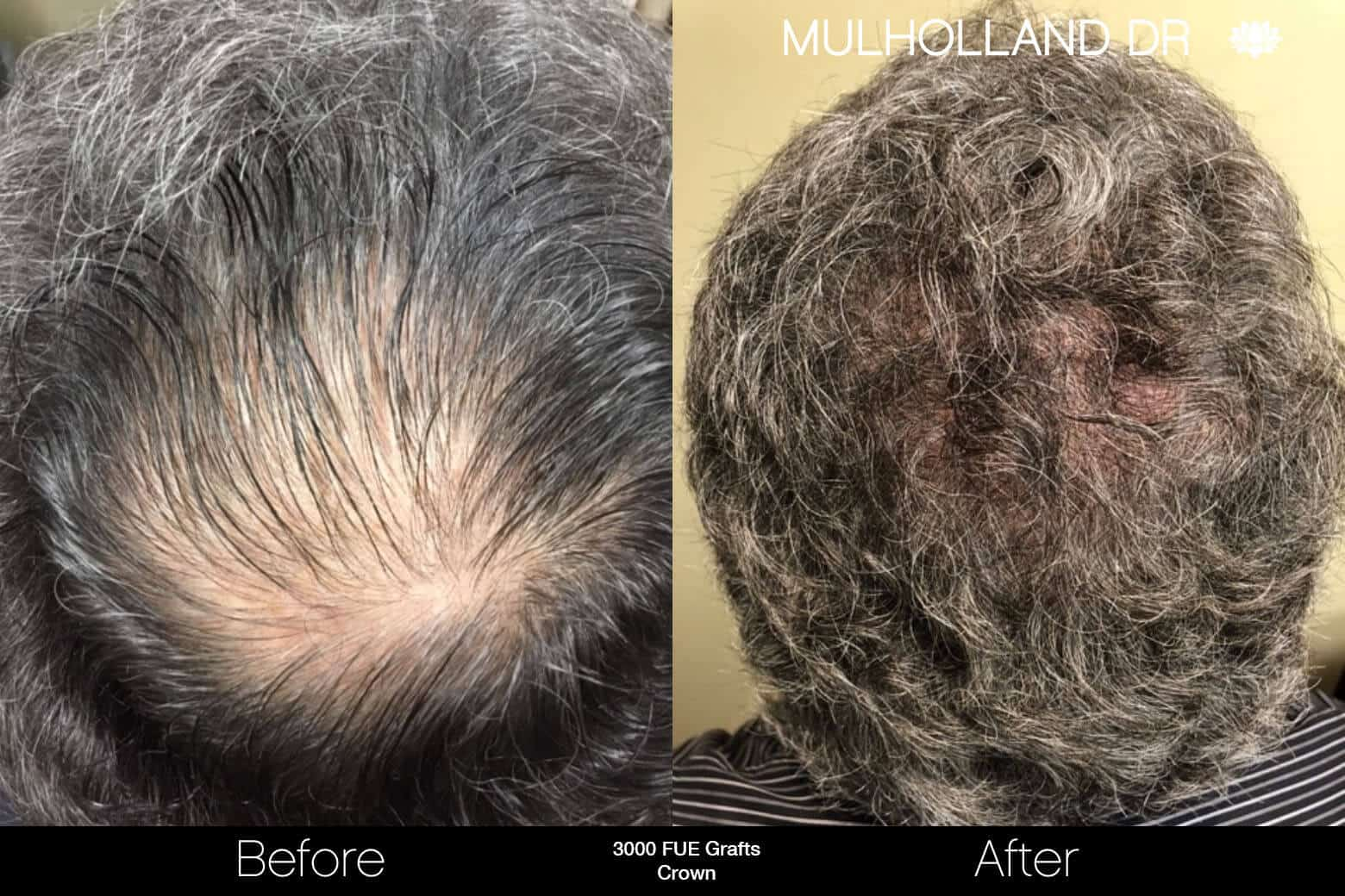 Artas Hair Transplant - Before and After Gallery - Patient Photo 87