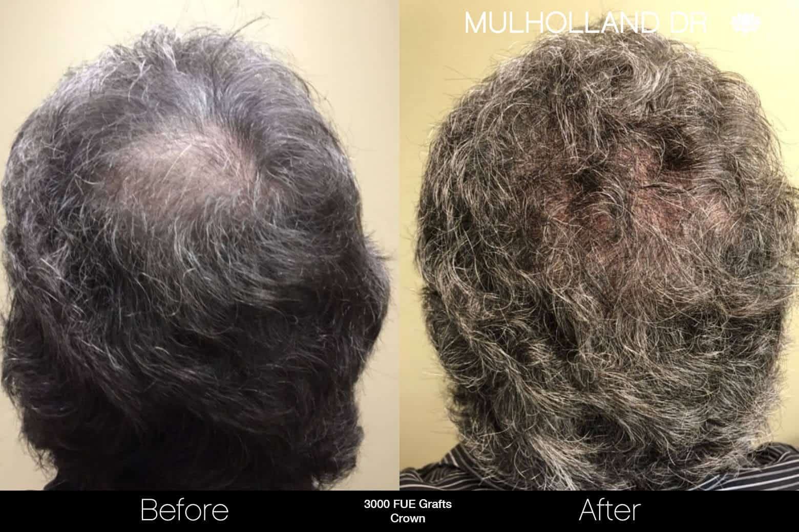 Artas Hair Transplant - Before and After Gallery - Patient Photo 88