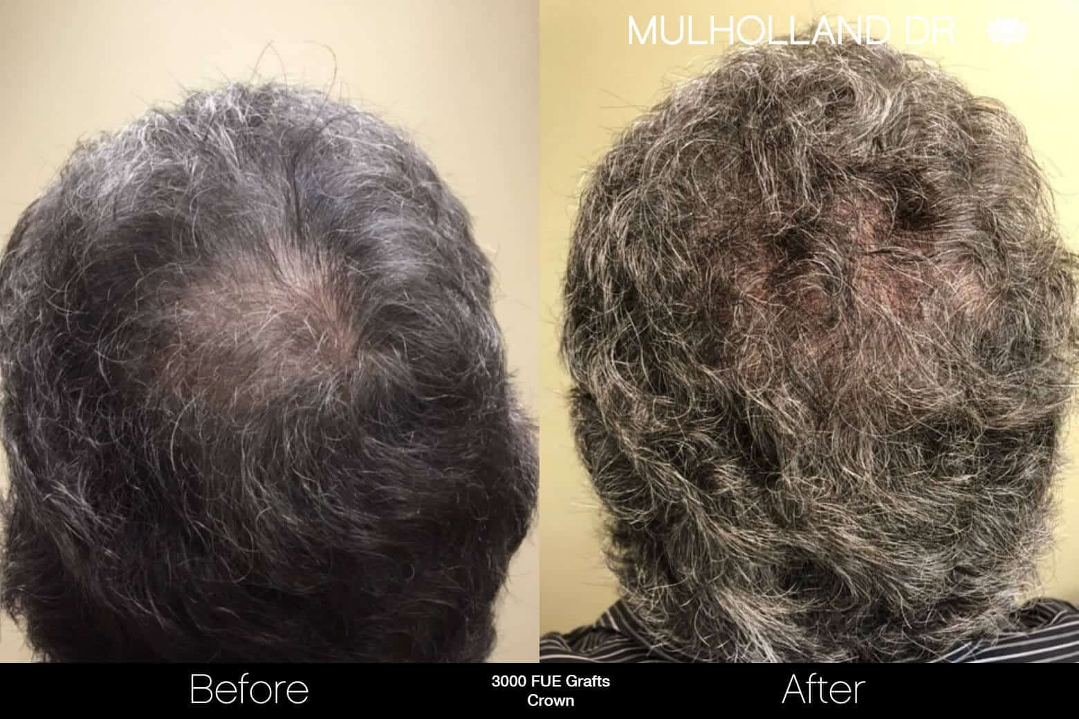 Artas Hair Transplant - Before and After Gallery - Patient Photo 89