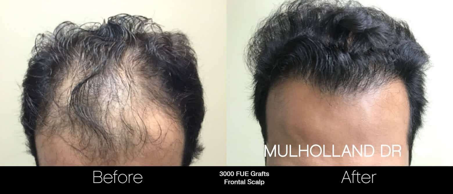 Artas Hair Transplant - Before and After Gallery - Patient Photo 9