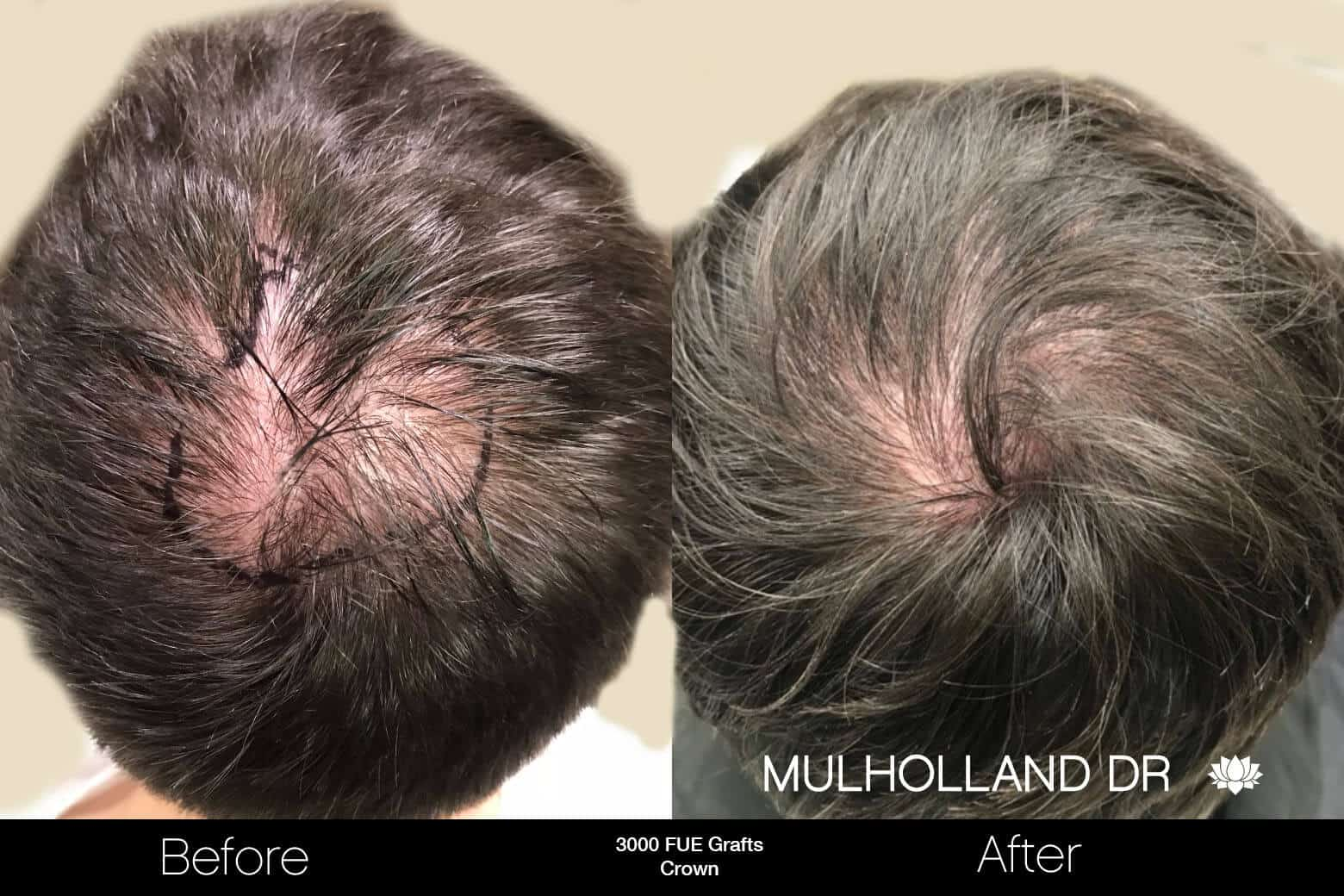 Artas Hair Transplant - Before and After Gallery - Patient Photo 90